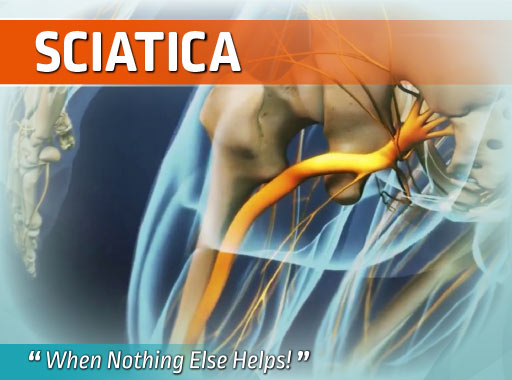 sciatica, chronic pain
