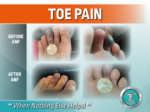 toe pain, pain therapy, inflammation, toe injury, numbness,