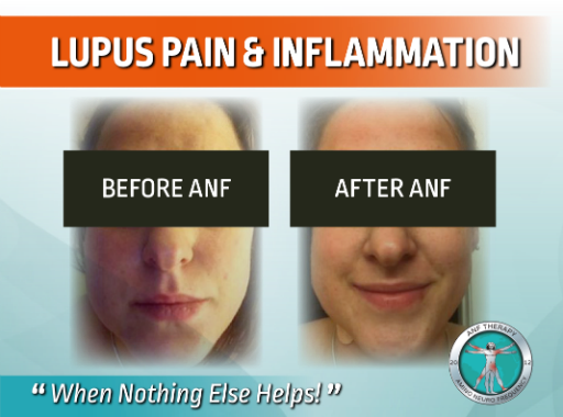 lupus, inflammation, anf therapy, chronic pain, autoimmune disease