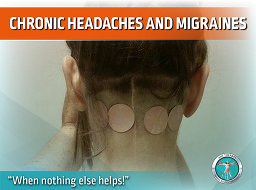 chronic headache, chronic pain, head pain, anf therapy, inflammation, migraine
