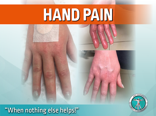 hand pain, anf therapy, inflammation, swollen