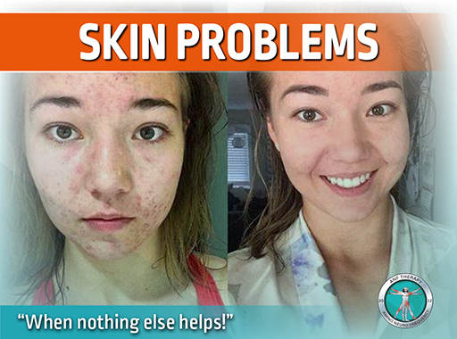 skin issues, acne, anf therapy, pimples