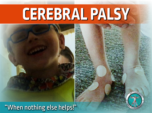 celebral palsy, anf therapy, recovery