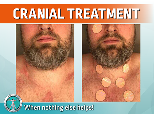 cranial inflammation, anf therapy,