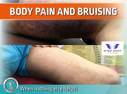 pain therapy, body pain, bruising,