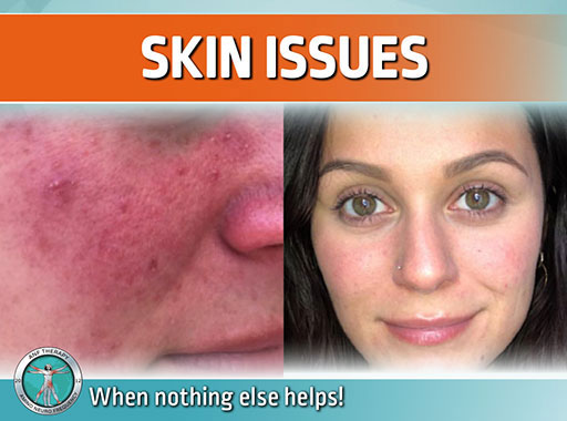 gut, inflammation, symptoms, bacteria, chronic skin issues, pimples, acne