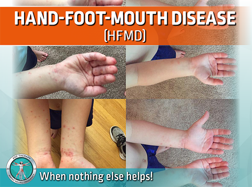 infection, viral, hfm, hand foot and mouth disease, frequency therapy, rash, blisters