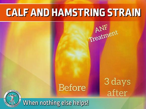 calf, hamstring, inflammation, strain