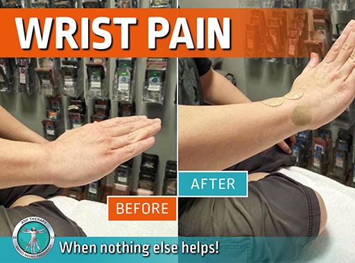 wrist pain, inflammation, chronic pain, pain therapy