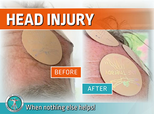 ANF Therapy Before & After: Head Injury