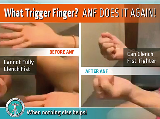 anf therapy, nerves, health, sciatica, pain therapy, inflammation, carpal tunnel, trigger finger, chronic pain, holistic