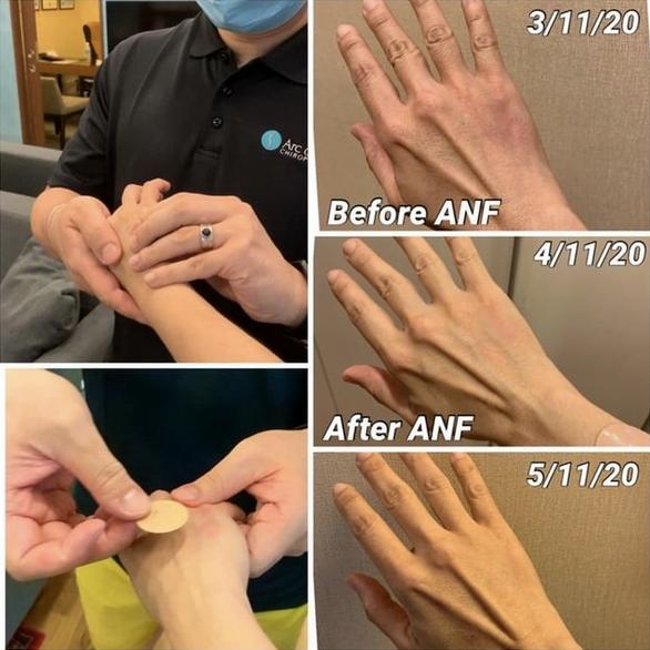 ANF Heals Bruises Fast