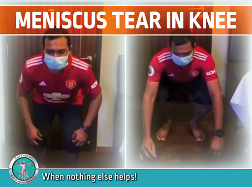 Meniscus Tear in Knee